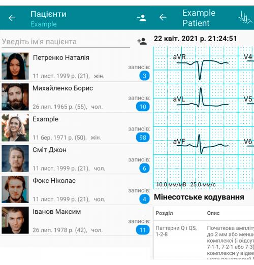 Обновление DiaCard – ЭКГ Регистратор для смартфона и планшета